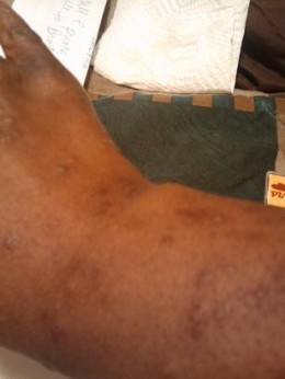 Flea bites on african american skin