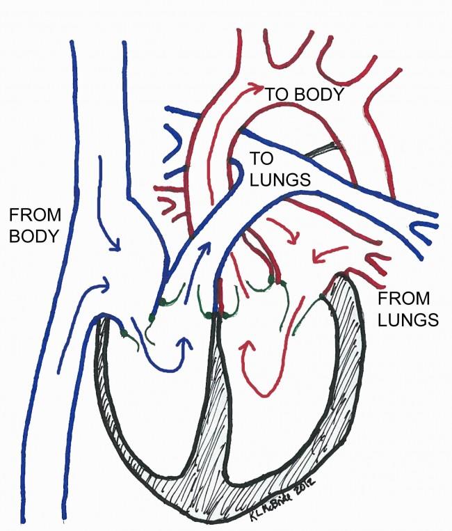 Normal Heart Flow Diagram Free Car Wiring Diagrams